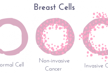Non-Invasive vs. Invasive Breast Cancer
