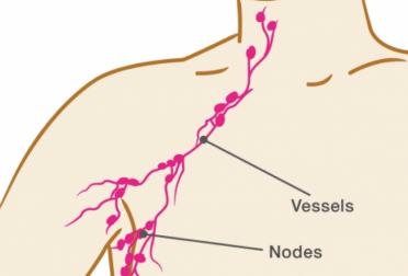 Breast Cancer and Lymph Nodes